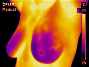 thermography2.jpg (15831 bytes)